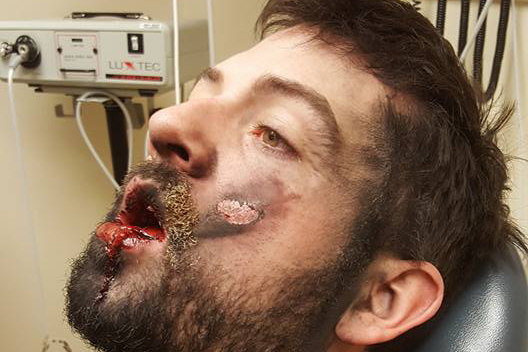Dude's vape spontaneously exploded in his face